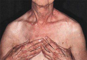 Грудной дерматомиозит