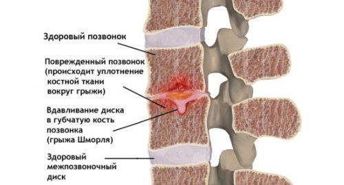 Грыжа Шморля — продавливание диска в губчатую ткань позвонка