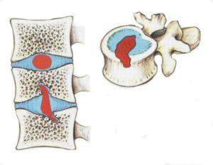Грыжи шморля в грудном отделе позвоночника