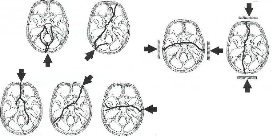 Характерные варианты переломов костей основания черепа