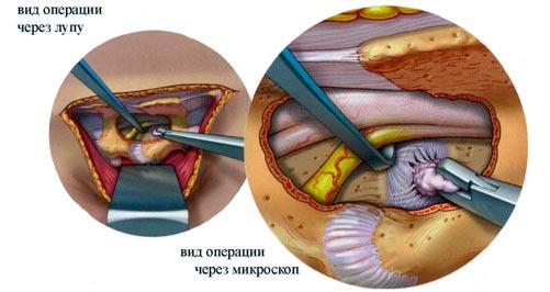 Хирургическое лечение грыжи диска