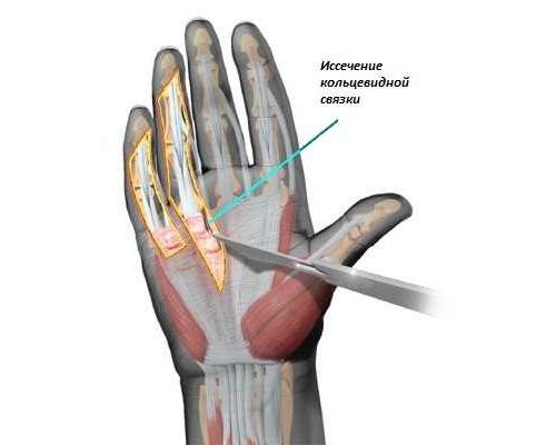 Хирургическое лечение камптодактилии