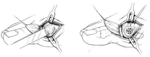 Хирургическое лечение косточки на ноге