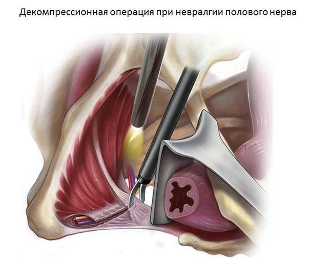 Хирургическая декомпрессия полового нерва