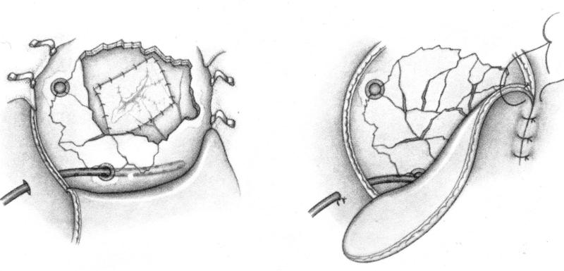 Хирургия при переломе черепа