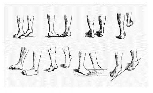 Ходьба при плоскостопии