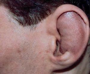 Хондрит ушной раковины