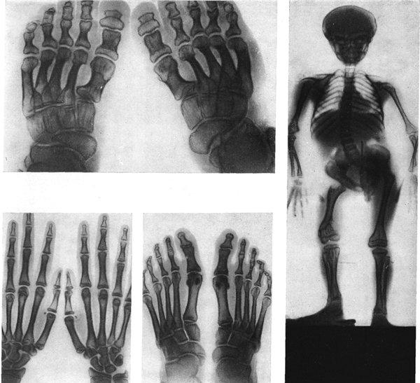 Хондродисплазия костей
