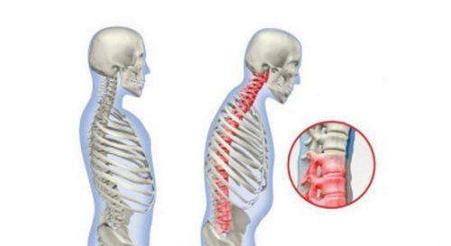 Проявление хондроза грудного отдела