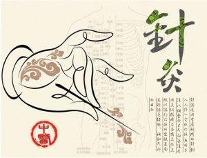 Иглоукалывание — китайская традиция