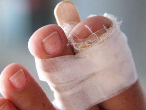 Иммобилизация сломанного пальца на ноге