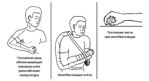 Иммобилизация при переломе предплечья