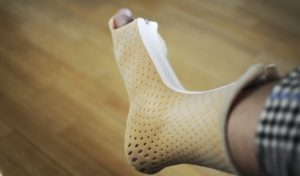 Иммобилизация при переломе костей стопы