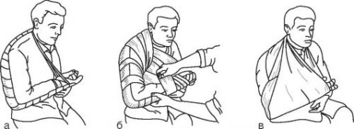 Иммобилизация руки