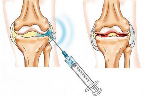 Введение инъекции в коленный сустав
