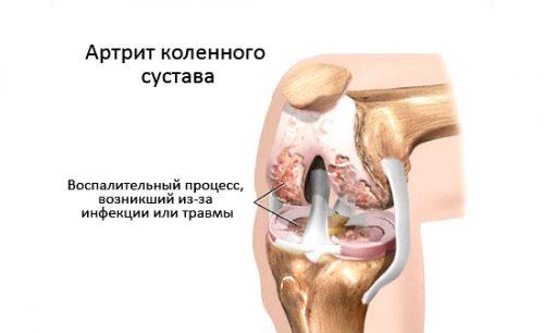 Инфекционный артрит суставов