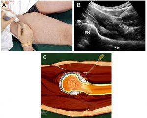 Обезболивающие инъекции в тазобедренный сустав