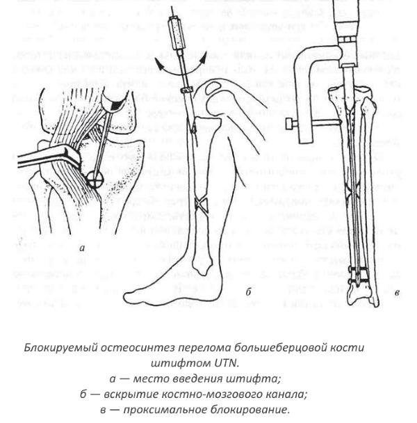 Интрамедуллярный блокирующий остеосинтез