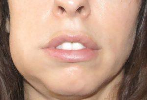 Отек челюсти при остеомиелите