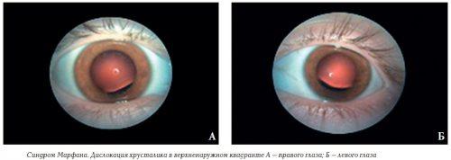 Изменение глаз при синдроме Марфана