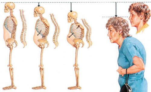 Изменение позвоночника при остеопорозе