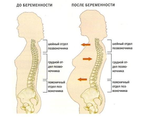 Изменение в позвоночнике при беременности