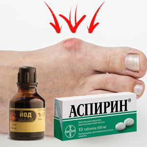 Йод и аспирин от косточки на ноге