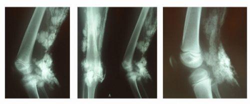 Кальцинаты в мягких тканях на рентген снимке