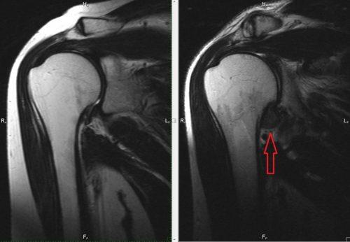Адгезивный капсулит на МРТ