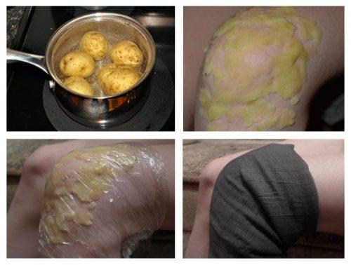 Картофельный компресс для суставов