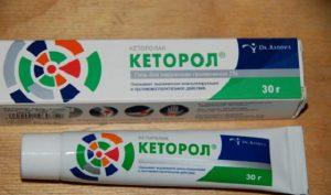 Кеторол гель для суставов