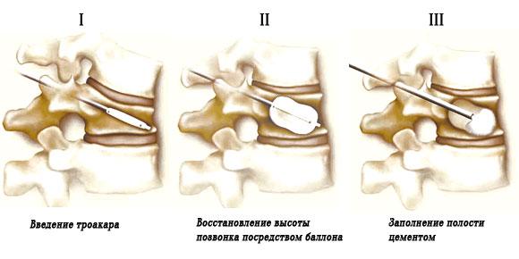 Этапы кифопластики