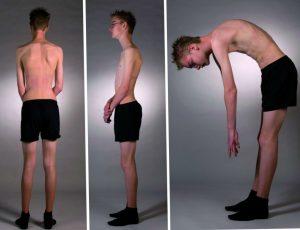 Деформация спины при кифозе