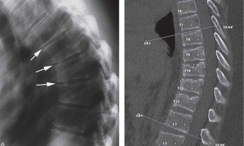 Кифоз на МРТ и рентген снимке