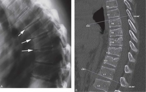 Кифоз на рентген снимке