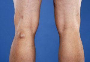 Видимая опухоль при гигроме колена