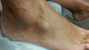 Визуальное проявление кисты голеностопа