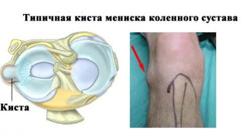 Киста мениска колена
