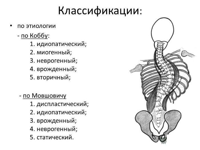 Классификации сколиоза по Коббу и Мовшовичу