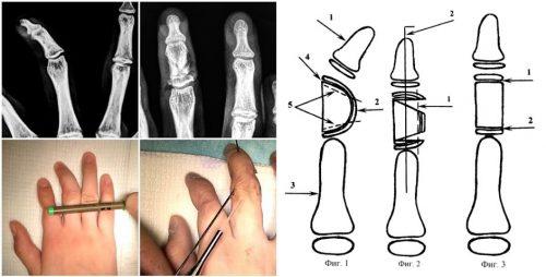 Хирургическое выравнивание клинодактилии