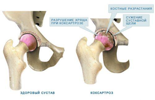 Изменения при коксартрозе