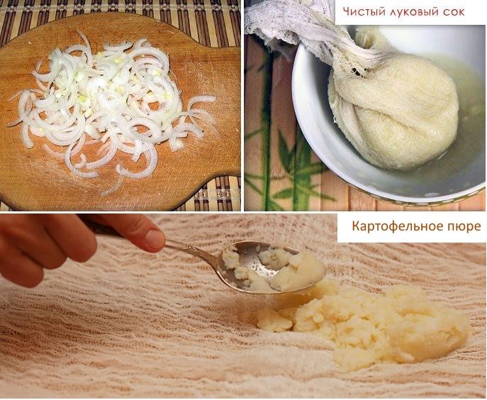 Компрессы с луком и картофелем