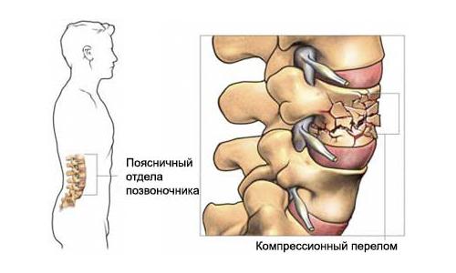 Возникновение компрессионного перелома поясницы