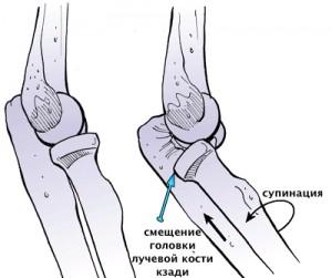 Контрактура из-за нестабильности локтевого сустава