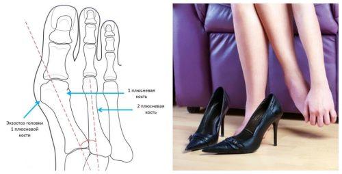 Возникновение косточки на ноге большого пальца стопы