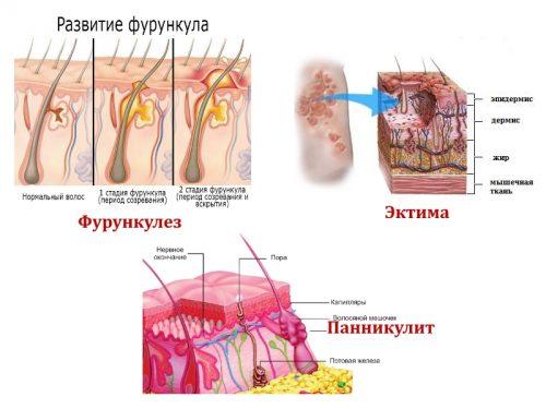 Возможные кожные заболевания на ягодицах