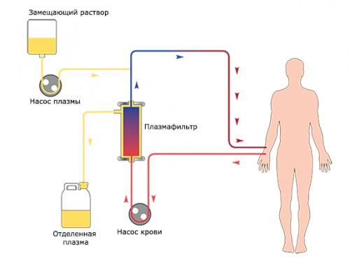 Криоплазмаферез