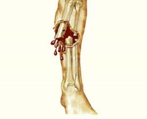 Кровотечение при открытом переломе