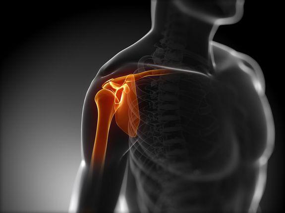 КТ диагностика плечевого сустава