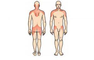 Локализация боли при ревматической полимиалгии